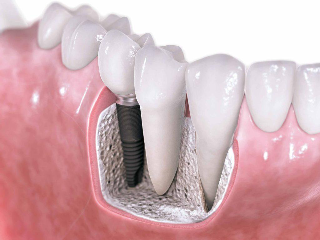 Implant dentaire : comment se faire opérer ?